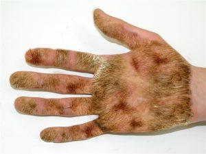 hairy palm